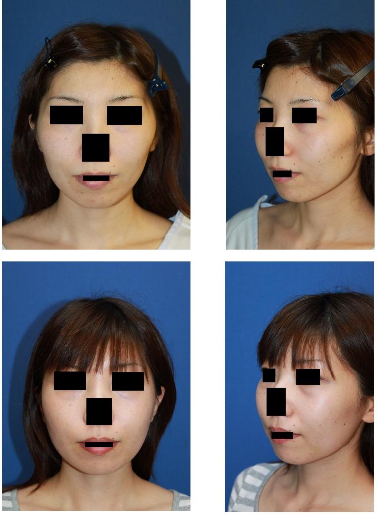 頬骨削り        付:他院で手術をした患者さんからの相談_d0092965_0184792.jpg