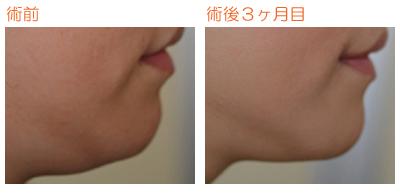 顎の脂肪吸引 術後3ヶ月目_c0193771_9261568.jpg
