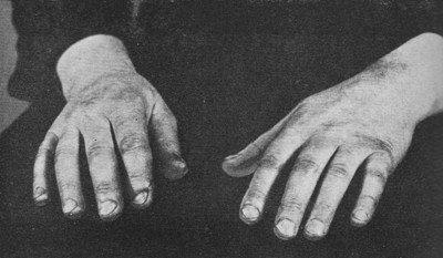 ▼ぢつと手を見る_d0017381_167953.jpg