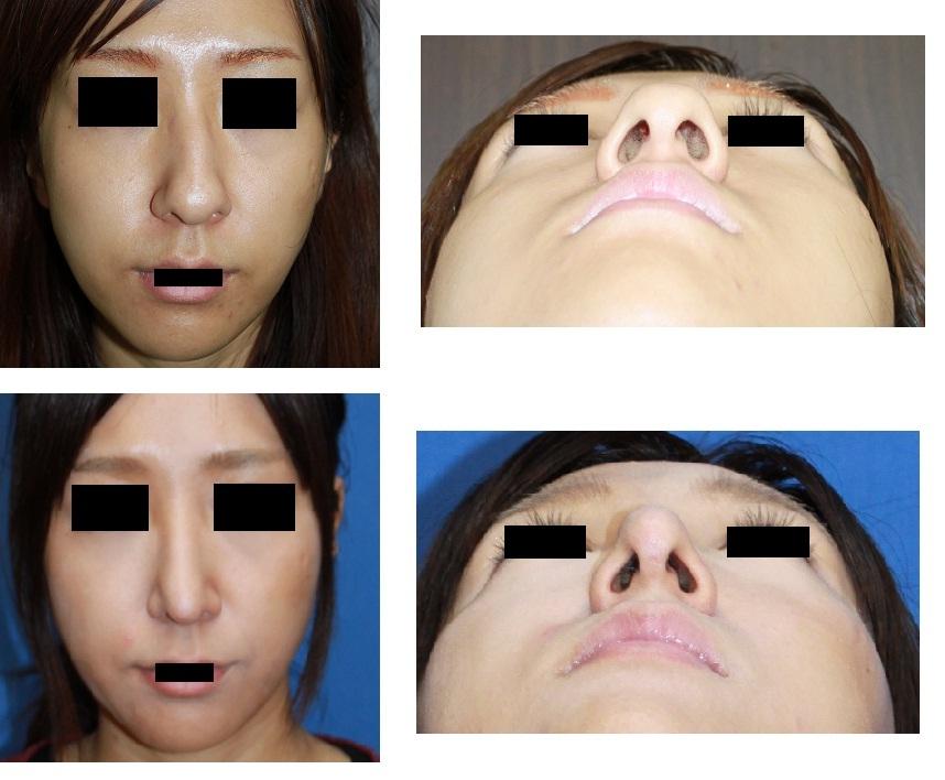 鼻尖縮小(オープン法)、鼻根縮小、斜鼻変形修正術_d0092965_0352687.jpg