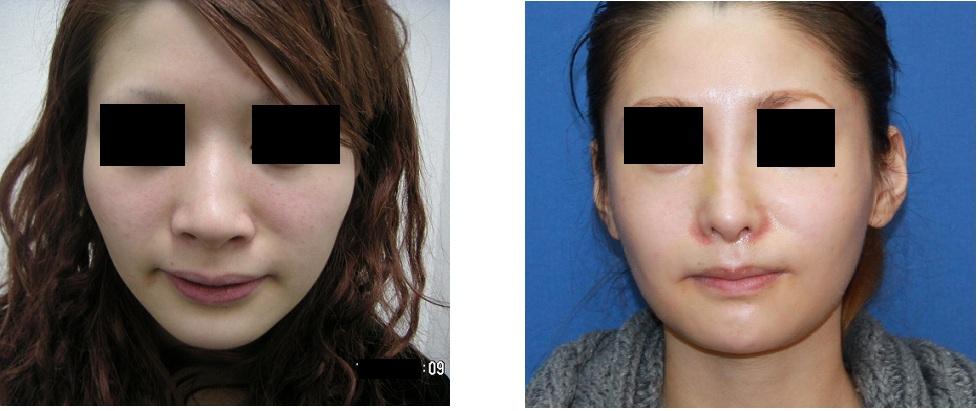 頬骨再構築術後約7年、小鼻縮小術後約6年、 頬骨前方削り術後約3年、鼻根縮小術術後3年_d0092965_158158.jpg
