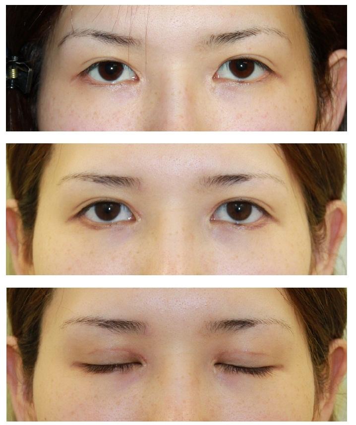 上眼瞼たるみ取り、上眼瞼脂肪取り、たれ目形成術_d0092965_23165231.jpg