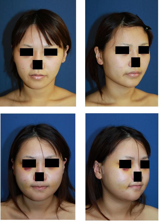 エラ削り、頬骨アーチリダクション、顎プロテーゼ留置術_d0092965_0263660.jpg