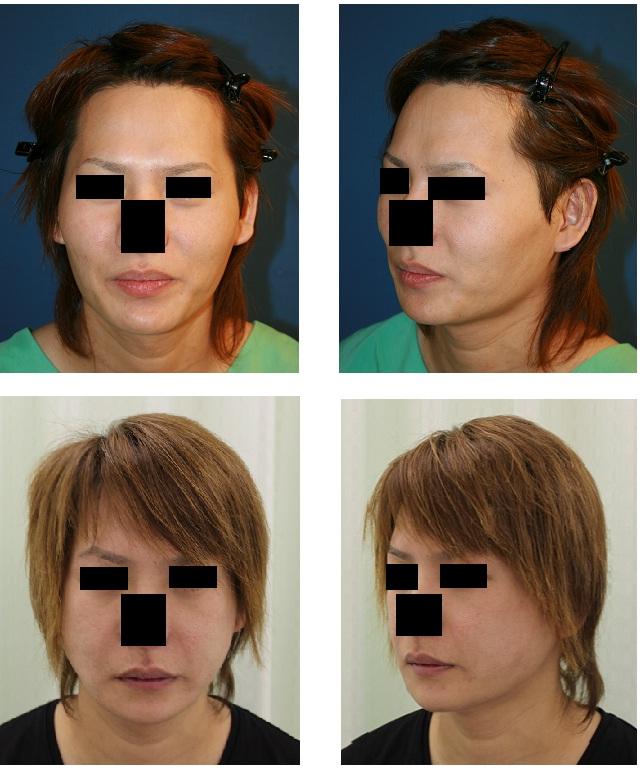 下顎骨スティック骨切術、 頬骨再構築法_d0092965_1333496.jpg
