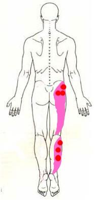 急性痛はその場で結果をだせ!_b0052170_14524426.jpg