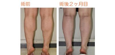 フクラハギを細くする手術(LDDN法) 術後2ヶ月目_c0193771_931863.jpg
