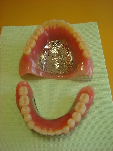 チタン製総入れ歯_b0184294_13565221.jpg