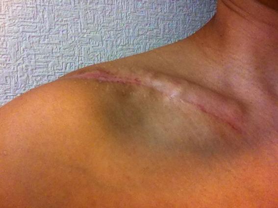 右鎖骨骨折の手術から約5ヶ月_a0170631_19472968.jpg