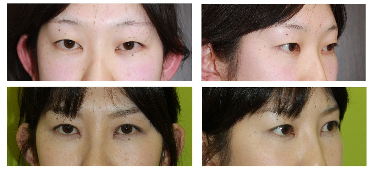 眼瞼下垂修正術、もうこ襞形成術、鼻根部脂肪移植術_d0092965_0204564.jpg