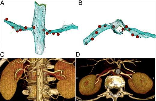 腎動脈交感神経アブレーションは心房細動アブレーション後の再発を抑制するかもしれない_a0119856_23585291.jpg