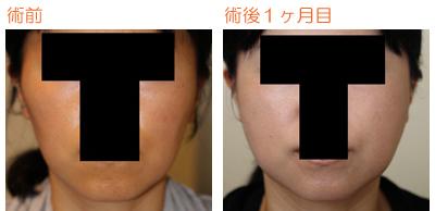 頬骨削り(再構築法)+エラ削り(プランB) 術後1ヶ月目_c0193771_853081.jpg