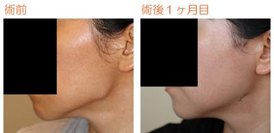 頬骨削り(再構築法)+エラ削り(プランB) 術後1ヶ月目_c0193771_8532175.jpg