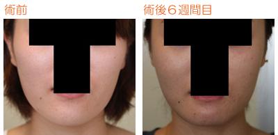 頬骨削り(再構築法)+顎削り(オトガイ骨切り) 術後6週間目_c0193771_10203352.jpg
