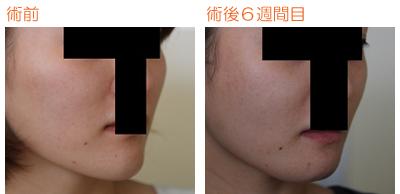 頬骨削り(再構築法)+顎削り(オトガイ骨切り) 術後6週間目_c0193771_10204447.jpg