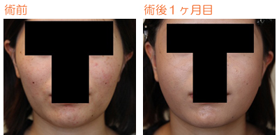 頬骨削り(再構築法) 術後1ヶ月目_c0193771_843744.jpg