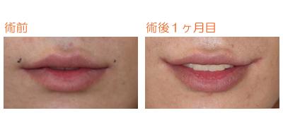 口角つり上げ 術後1ヶ月目_c0193771_944230.jpg