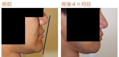 顎削り(オトガイ骨切り) 術後4ヶ月目_c0193771_923074.jpg