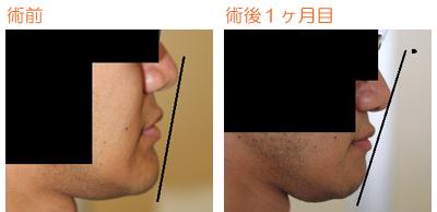 顎削り(オトガイ骨切り) 術後4ヶ月目_c0193771_961046.jpg