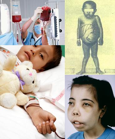 β-Thalassemia、地中海性貧血に...