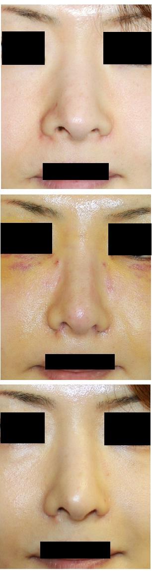 鼻根縮小術(外側法)、小鼻縮小術(内側法)_d0092965_17583076.jpg