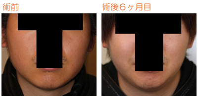 頬の脂肪吸引 術後6ヶ月目_c0193771_916250.jpg