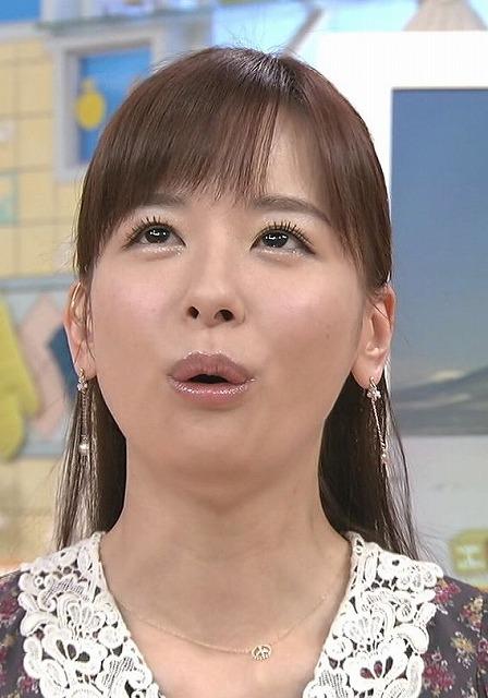 皆藤愛子 病気