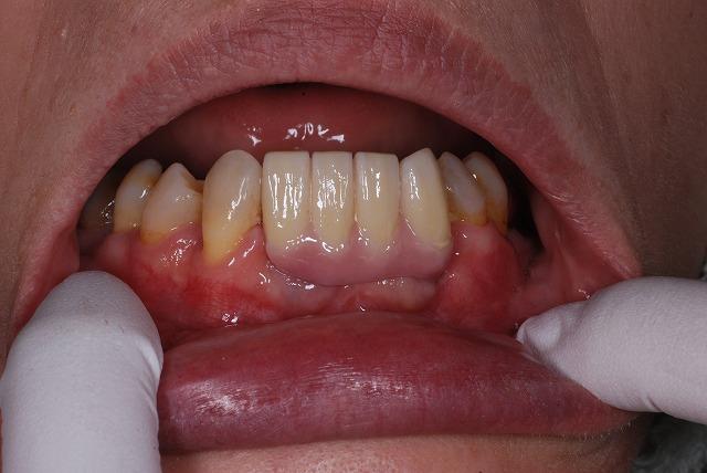 歯科技工 一般の方には判りづらいと思いますが_a0071724_19245090.jpg