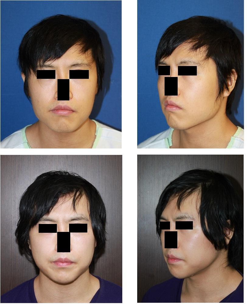 下顎骨スティック骨切術後約1年_d0092965_0224227.jpg
