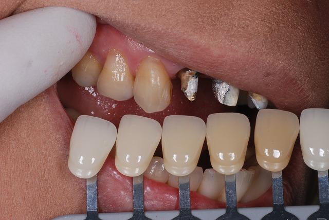 歯科技工 一般の方には判りづらいと思いますが_a0071724_9164049.jpg