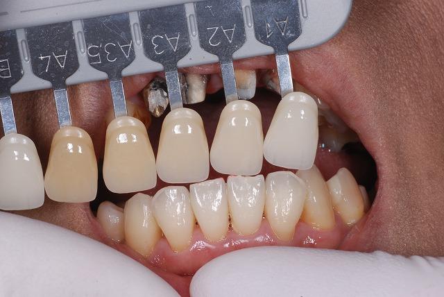 歯科技工 一般の方には判りづらいと思いますが_a0071724_9172694.jpg