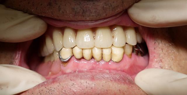 痛みの少ない入れ歯_b0184294_14473388.jpg