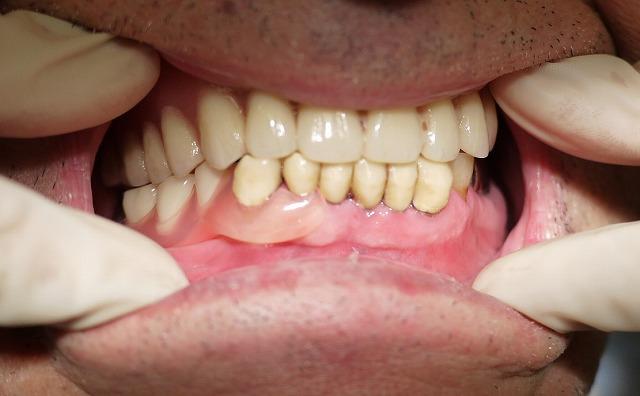 痛みの少ない入れ歯_b0184294_1448562.jpg