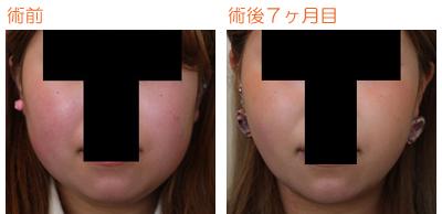 頬の脂肪吸引 術後7ヶ月目_c0193771_9564553.jpg