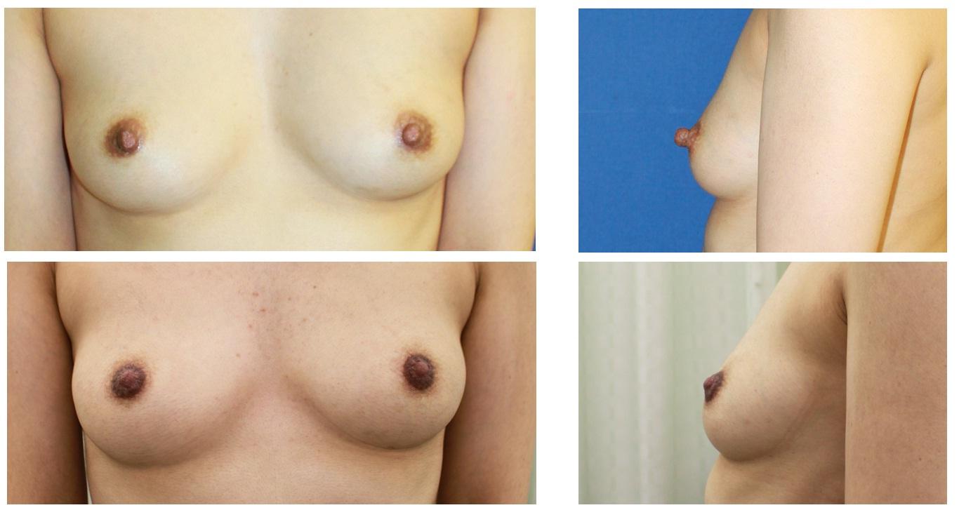 乳頭縮小形成術(ITO法)_d0092965_23314881.jpg
