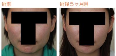 頬骨削り(再構築法)+エラ削り(プランB) 術後5ヶ月目_c0193771_15131383.jpg