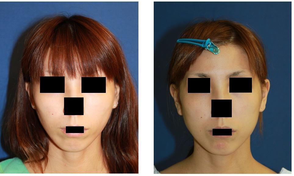 頬脂肪移植術約2年_d0092965_2372185.jpg