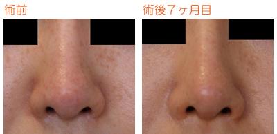 プロテーゼ鼻尖部に真皮巻き付け 術後7ヶ月目_c0193771_9421429.jpg