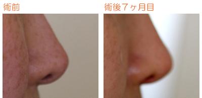 プロテーゼ鼻尖部に真皮巻き付け 術後7ヶ月目_c0193771_942522.jpg