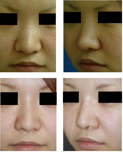 鼻プロテーゼ入れ替え術  : 術後4年   脇山先生_d0092965_3195253.jpg