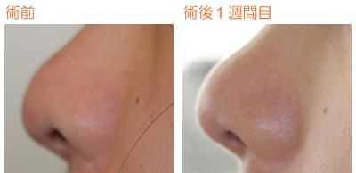 鼻孔縁下降術 術後1週間目_c0193771_11121567.jpg