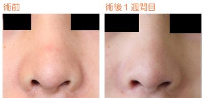 鼻孔縁下降術 術後1週間目_c0193771_1112970.jpg