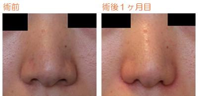 小鼻縮小 術後1ヶ月目_c0193771_10185083.jpg