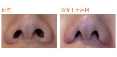 小鼻縮小 術後1ヶ月目_c0193771_10185693.jpg