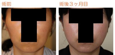 頬骨削り(再構築法)+エラ削り(プランc) 術後3ヶ月目_c0193771_9411218.jpg