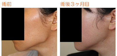 頬骨削り(再構築法)+エラ削り(プランc) 術後3ヶ月目_c0193771_9412445.jpg