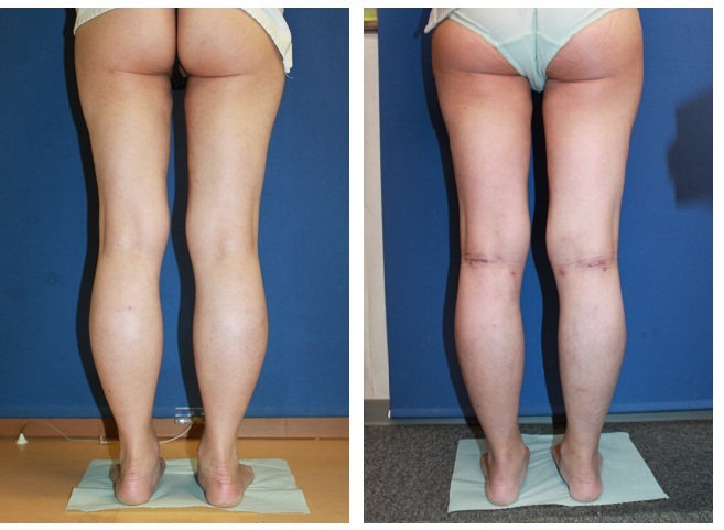 OICR(open incision calf reduction: 切開式ふくらはぎ萎縮術) ,ふくらはぎ脂肪吸引_d0092965_0102141.jpg
