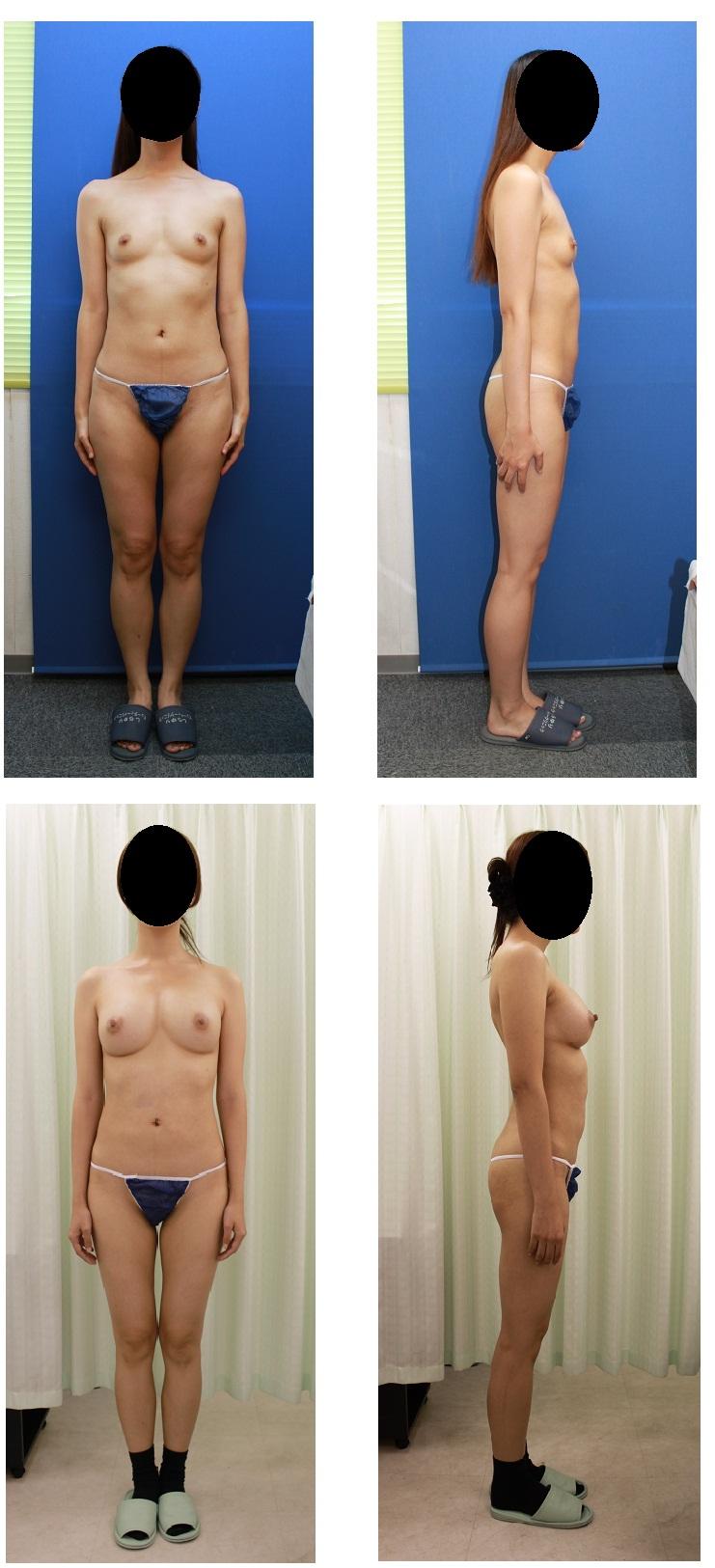 脂肪移植豊胸(1年に3回脂肪移植豊胸後5か月)_d0092965_23421335.jpg