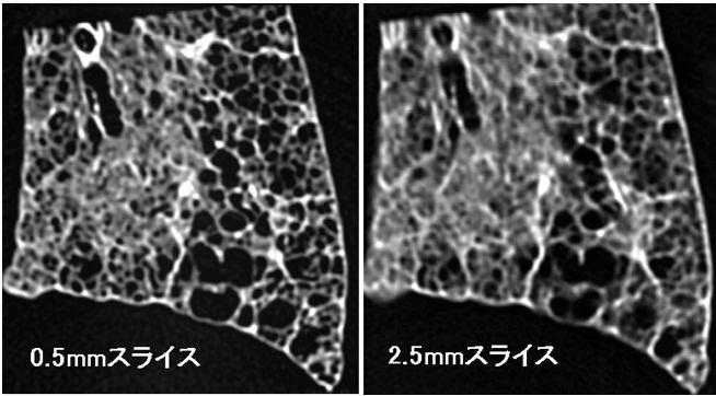 胸部CTにおける蜂巣肺の定義_e0156318_11563016.jpg