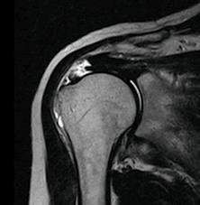 頚腕障害・・・NO,2鍵盤断裂で早い回復_e0097212_05269.jpg
