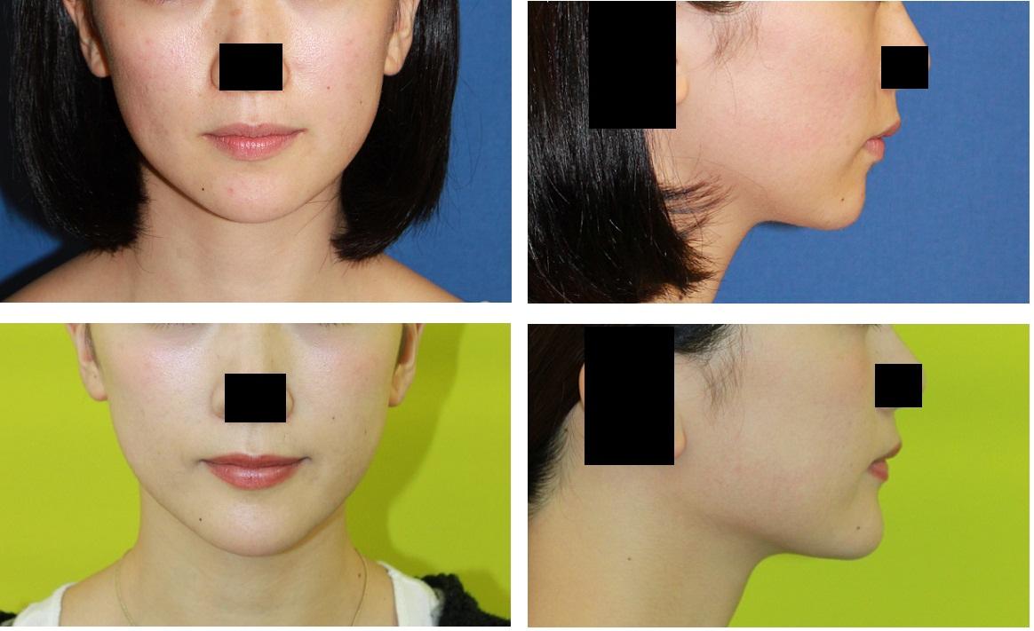 口角つりあげ術、 顎プロテーゼ留置術_d0092965_312217.jpg